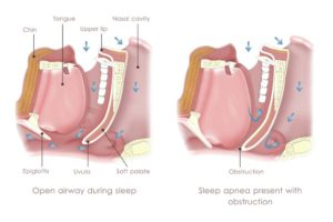 Diagrams of sleep apnea caused by airway obstructions