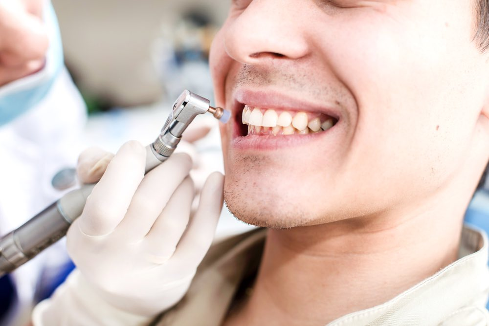 Dental Sealants being applied to a man's teeth